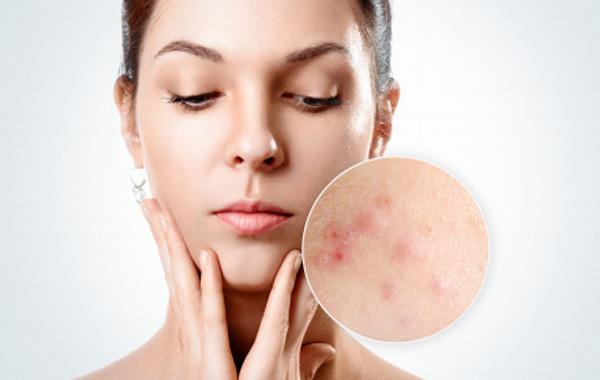 acne treatment advanced dermatology