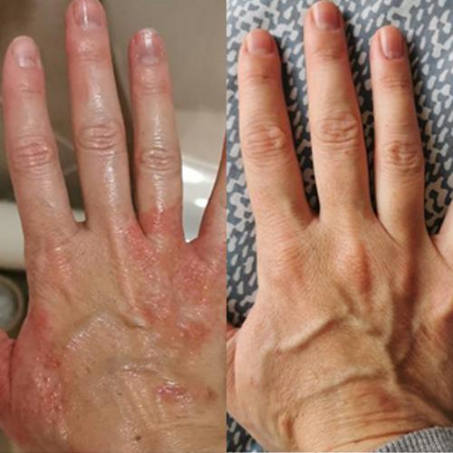 advanced dermatology eczema