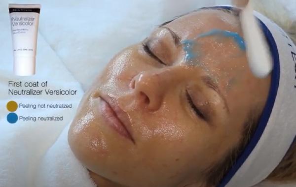 easy droxy peel advanced dermatology