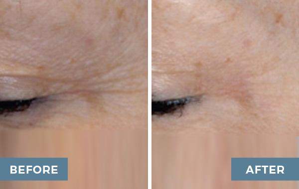 glycolic acid peels advanced dermatology