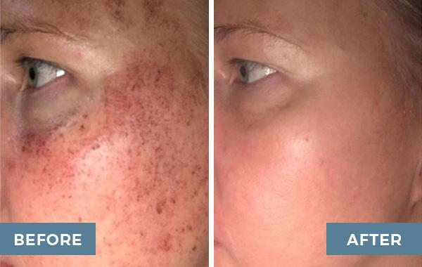 ipl advanced dermatology