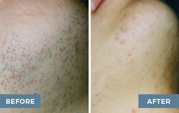 ipl hair removal advanced dermatology