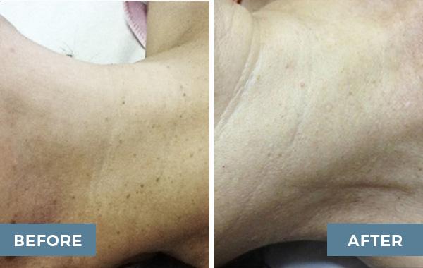 lamprobe advanced dermatology