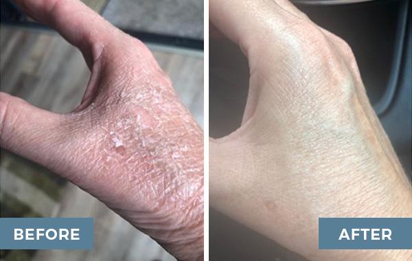 tca peel advanced dermatology